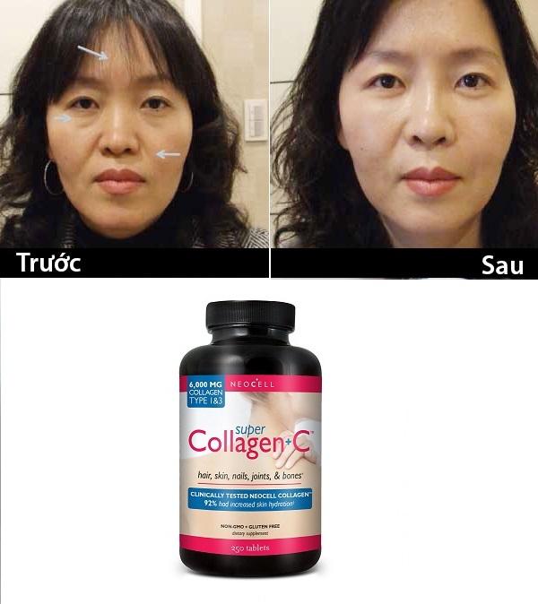 neocell-c-6000-mg-250-vien-logo