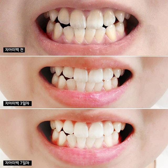 Kem đánh răng Median 86, Median 93% chuẩn Hàn Quốc 4