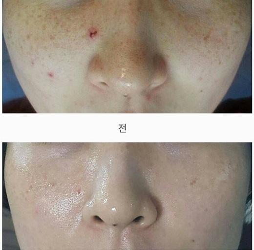 Tế bào gốc Bqcell Re-Cell Cure Ampule 10 x 2ml Hàn Quốc 2